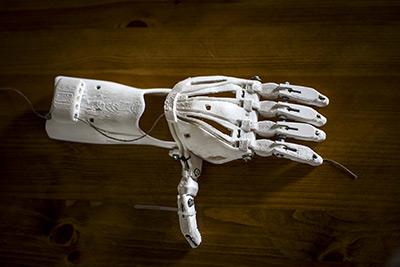 Prothèse imprimé